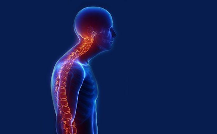 Torakal omurların doğal egrisinin artması ve aşırı bir kavis alma halidir. Omuzlar öne doğru medial rotate dediğimiz şekilde yuvarlanır. Omuzlar öne düştüğü için baş ve boyun öne doğru pozisyonlanır. Sırt kaslarının uzaması, göğüs kaslarının fazlaca çalıştırılması, uzun süreli masa başı aktiviteleri, ders çalışma gibi uzun süre tekrar eden deformasyona neden olacak sebepler bu postüre neden […]