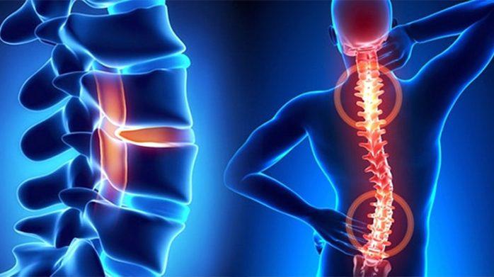 Omurganın göğüs ya da bel bölgelerinde görülebilen yana doğru eğrilikanlamına gelir. Normal ve sağlıklı omurgada omurlar arkadan bakıldığında yukarıdan aşağıya doğru düz bir hat şeklinde uzanır. İdiopatik skolyoz: nedeni bilinmeyen En sık görülen skolyoz türüdür.omurga yana eğilme 's' veya 'c'şekilli olabilir.yana doğru eğilme dışında omurların kendi etrafındadönmesi de sıklıkla görülür.omurlarda ki bu dönme sırtta ve […]