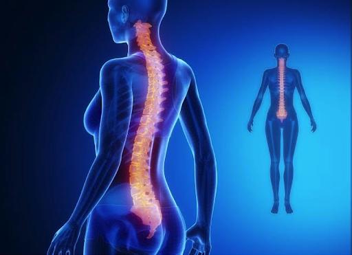 Lumbal omurların doğal kavisinin artması sonucu meydana gelir. Genellikle karın bölgesi öne doğru çıkarken kalçada abartılı bir şekilde geriye doğru çıkıktır. Gluteal kas zayıflığı, gergin bel kasları, zayıflamış kalça fleksörleri sebep olabilir. Lordoz aslında kadınlar tarafından beğenilen. özellikle dansçıların çıkık popolarını andıran bir görüntüdür. Ancak sağlık açısından zayıf bel kaslarınız var ise ağrı yaşam kalitenizi […]